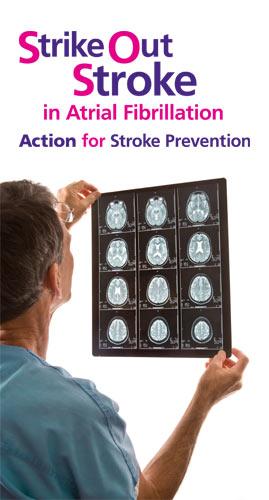 strike-stroke-article