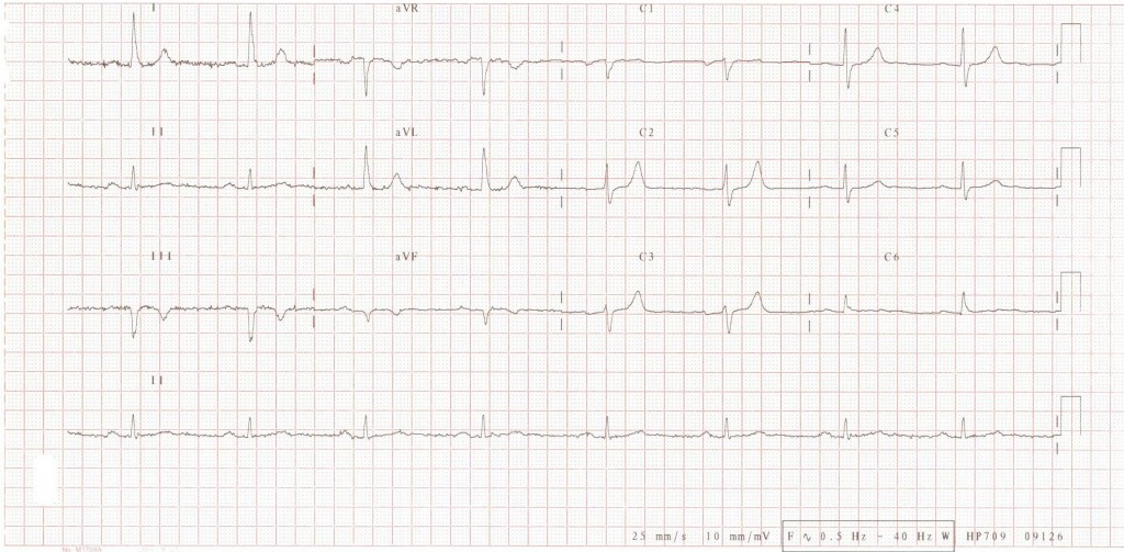 Figure 1a. 12 lead electrocardiogram - normal sinus rhythm.