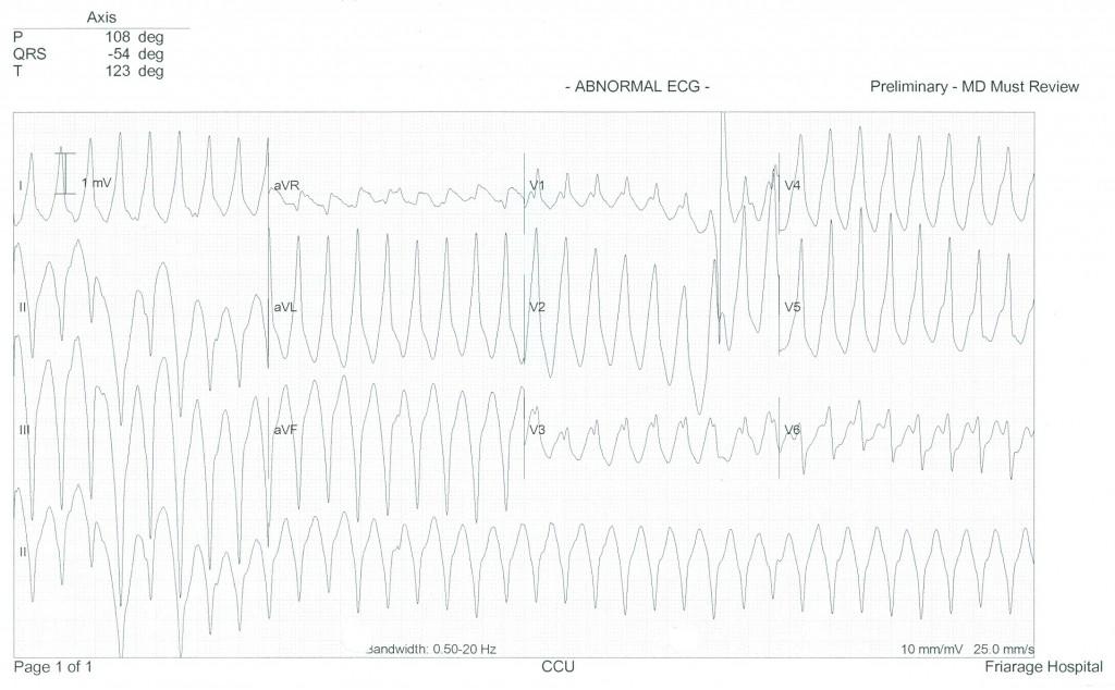 Figure 1b.  12 lead electrocardiogram - monomorphic ventricular tachycardia