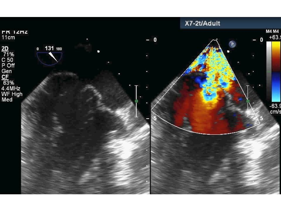 Figure 2.  Transoesophageal echocardiography showing bilateral mitral valve leaflet prolapse with moderate mitral regurgitation