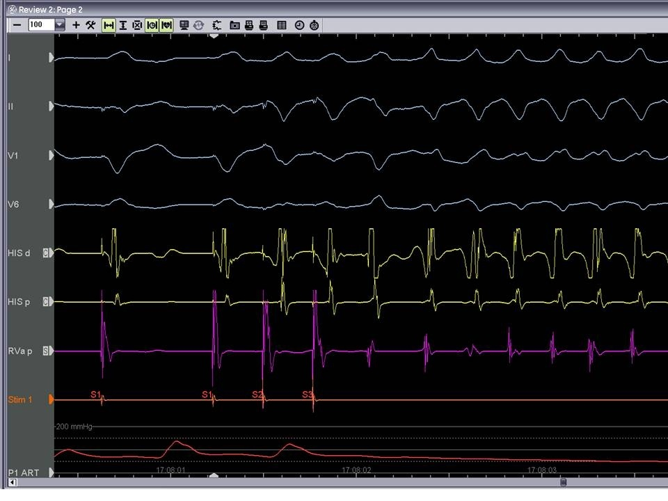 Figure 3a. Programmed VT stimulation inducing ventricular tachycardia