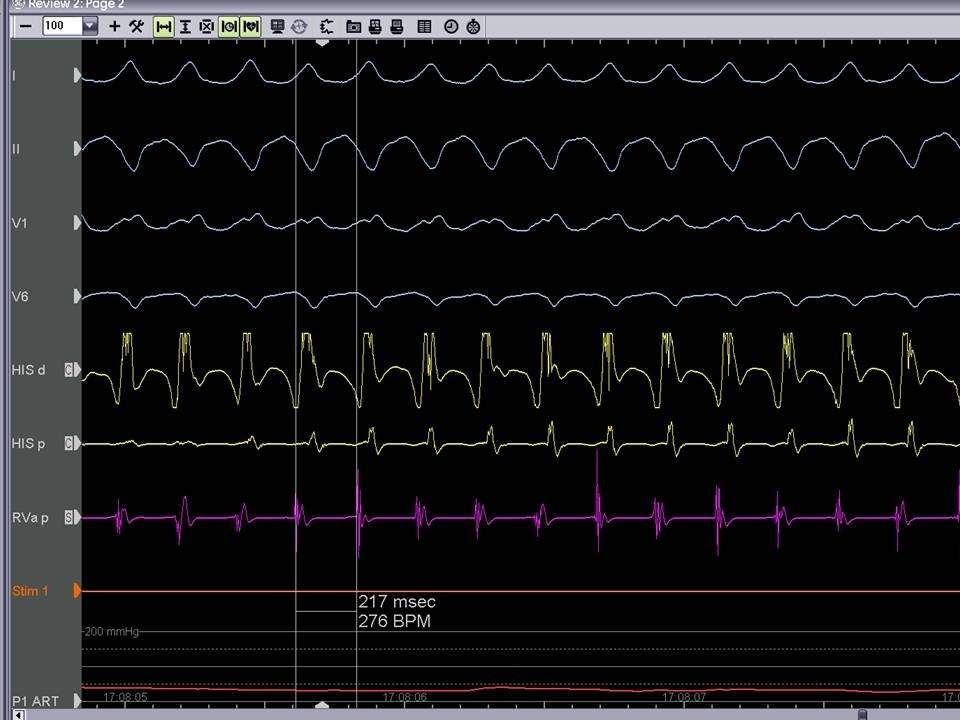 Figure 3b. Monomorphic VT with a cycle length of 217ms originating from the aorto mitral continuity