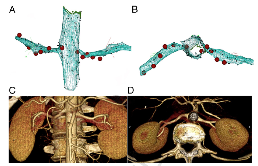 Imaging of renal arteries before and after ablation. (A, B) Three-dimensional reconstructions with sites of radiofrequency ablation represented in red; (C, D) magnetic resonance imaging scans performed 6 months after ablation, demonstrating no evidence of renal artery stenosis