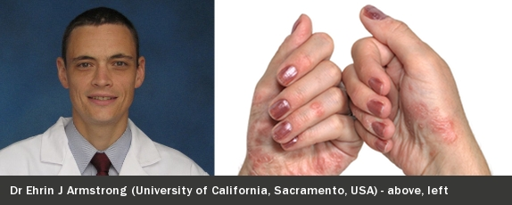 Psoriasis linked to adverse events and AF