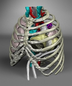 Fwd_ Case Report on 14-Year-Old Pediatric Total Artificial Heart Patient Published in Perfusion Journal