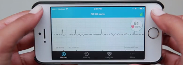 7 - Fwd_ AliveCor Receives CE Mark on Atrial Fibrillation Algorithm 4