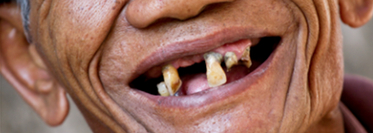 CHD patients with no teeth have nearly double risk of death