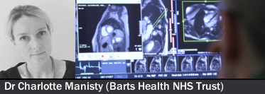 Improving outcomes from VT ablation